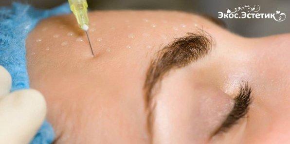 -87% на инъекционную косметологию в «Экос-Эстетик»