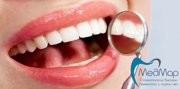 -82% от стоматологии «МЕДМАР». 1 мин. от метро!